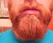 brian's beard